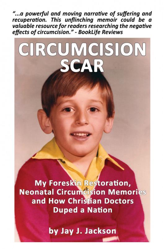 Circumcision Scar book cover